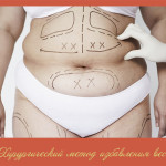 Хирургический метод избавления веса