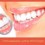Отбеливание зубов Whitelight