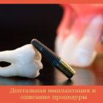 Дентальная имплантация и описание процедуры